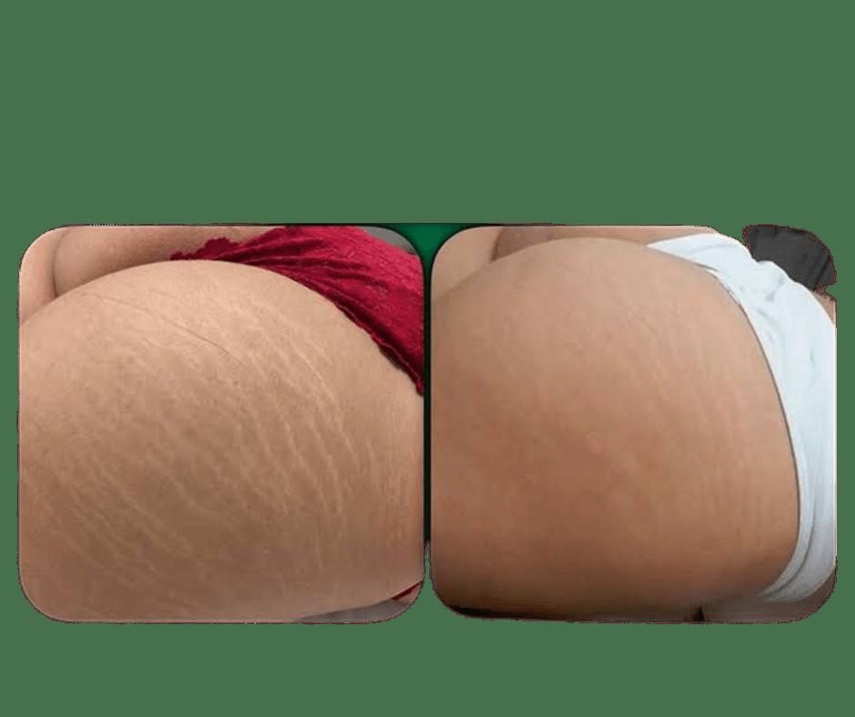 striort tegen striae voorschoten brazillie