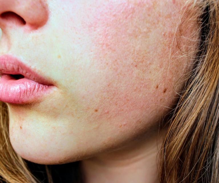 rosacea effectieve behandeling huidverbetering
