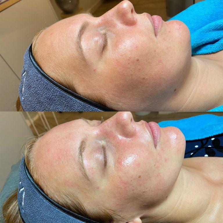 Glow huidtherapie voorschoten leiden dermaplaning