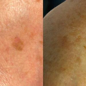 ouderdomsvlekken hyperpigmentatie pigmentvlekken vlek leiden voorschoten wassenaar