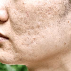 acne acnelittekens acnescars scars huidtherapie microneedling laser
