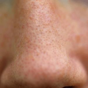 Grove porien voorschoten porien verwijd