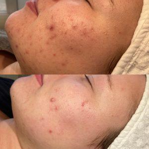 Acnetherapie acne littekens voor en na huidtherapie voorschoten