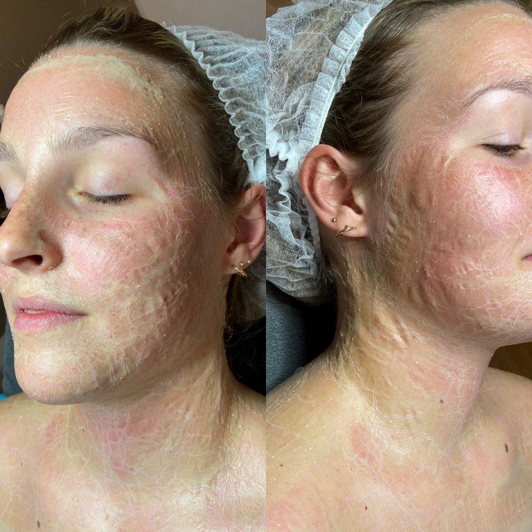 Masker enzymatisch bio pulse voorschoten huidtherapie huidtherapeut anti aging leiden