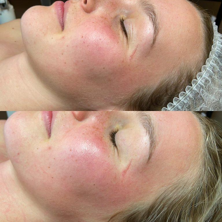 Biopulse therapy glow voorschoten huidtherapie leiden wassenaar huidtherapeut antiaging