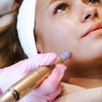 Microneedling antiaging littekens acne huidverbetering voorschoten leiden wassenaar
