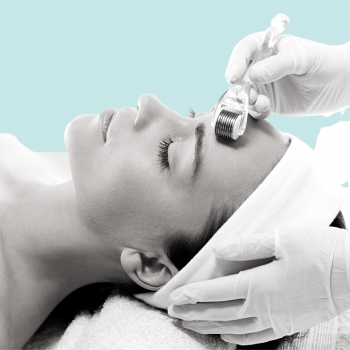 microneedling voorschoten huidverjonging